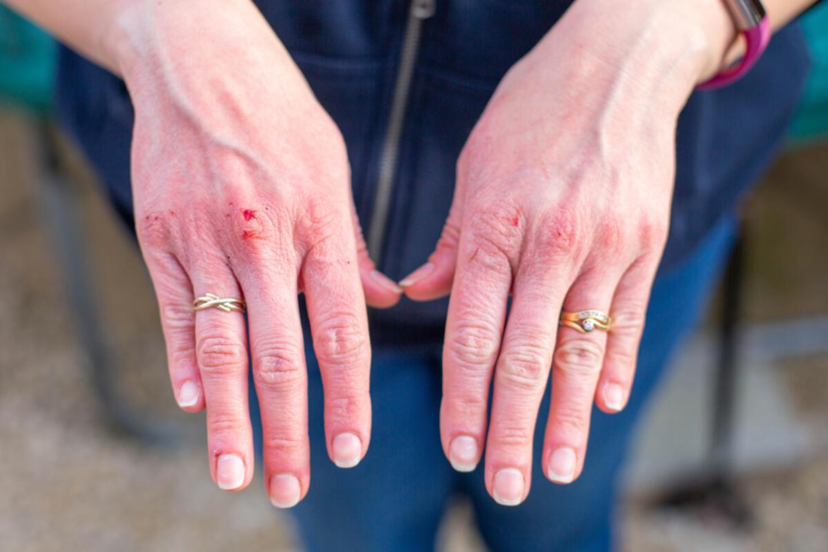 Kan basıncıÜnüzü 5 günde mükemmel görünmenin en iyi yolu